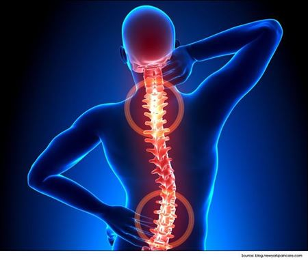 Picture for category Spine/Backbone