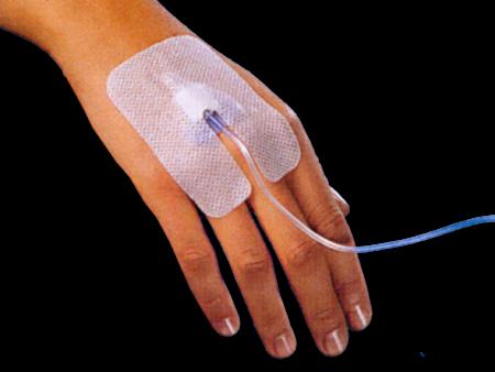 Picture for category Στερεωτικά αυτοκολλητα για φλεβοκαθετηρα